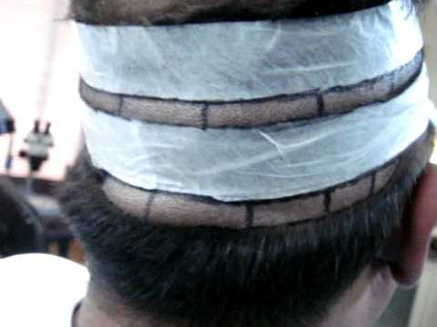 Fue Hair Transplant Reviews