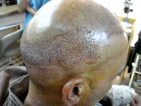 Burn Hair Transplant In Pakistan