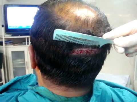 Hair Loss Help Expert Dr. Jawad