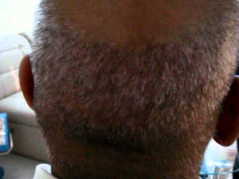 No Touch Technique Hair Transplant