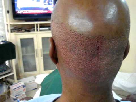 Beard Hair Transplant In Pakistan