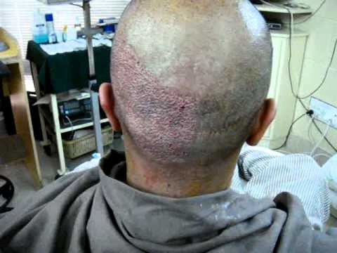 Watch Live FUE Hair Transplant Surgery