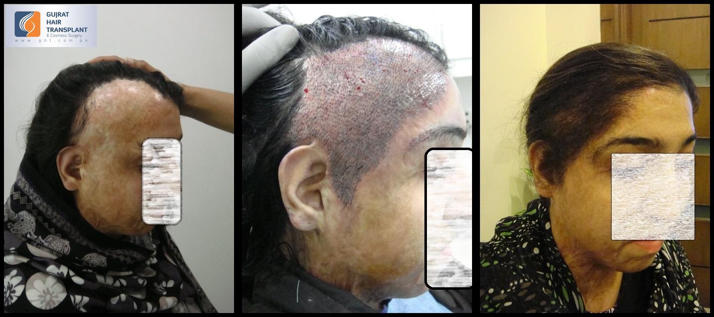 Women Body And Head Burnt Hair Transplant Fue Pakistan