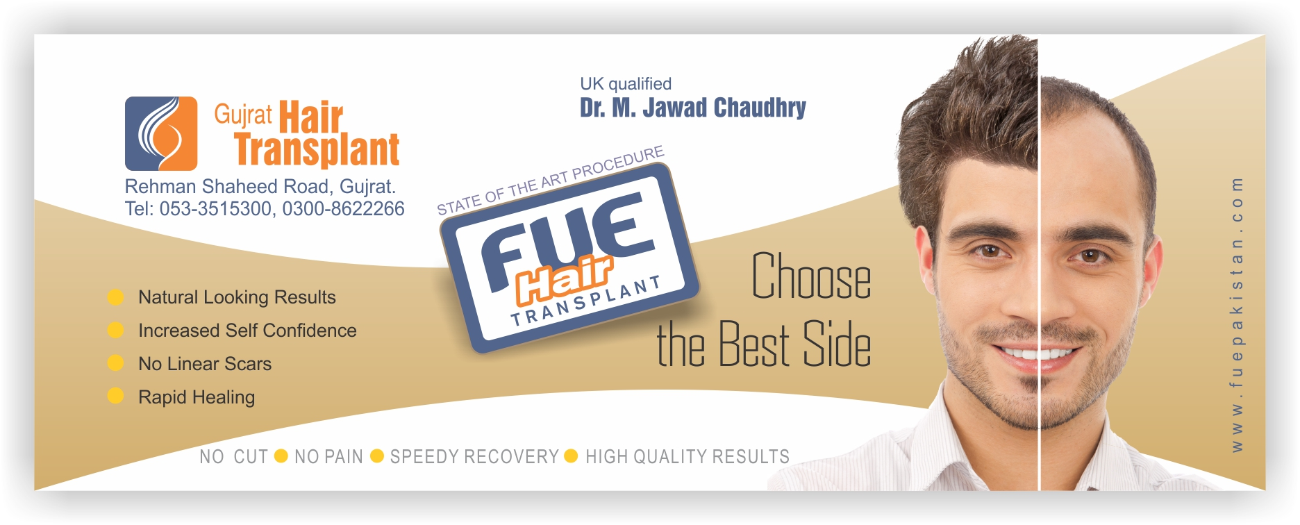 Side Effects Of Fue Follicular Unit Extraction And