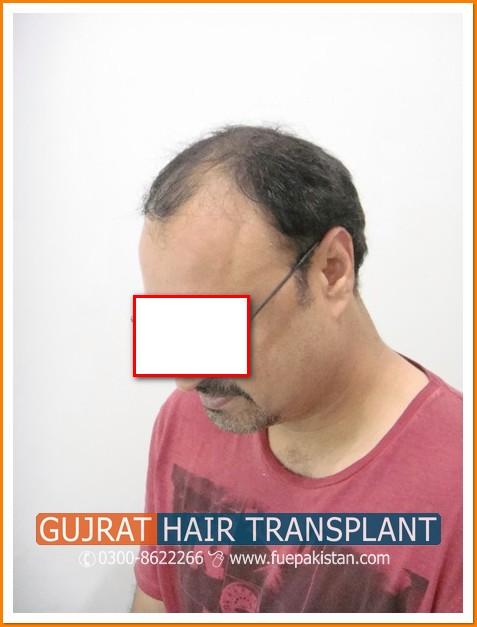 Fue Hair Transplant Amir Fue Hair Transplant In