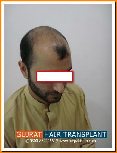 Prp Fue Hair Stem Cell Transplantation In Pakistan Fue