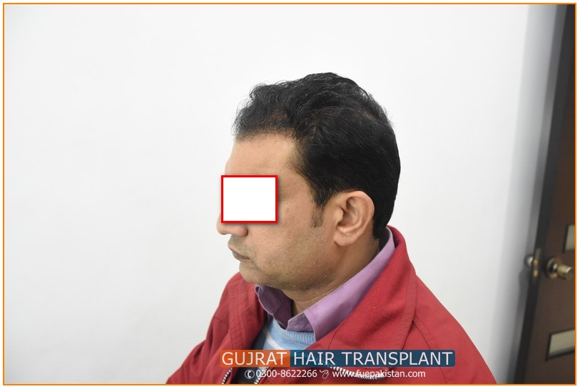Fue Hair Transplant Before And After Fue Hair Transplant